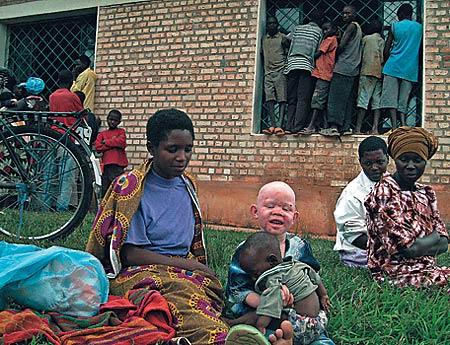 Uma mãe com seu bebê albino no Burundi: tradição macabra